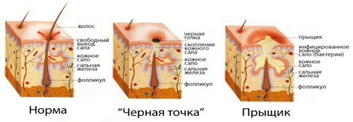ot-chego-poyavlyayutsya-pryshhi