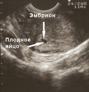 3 тиждень вагітності узд