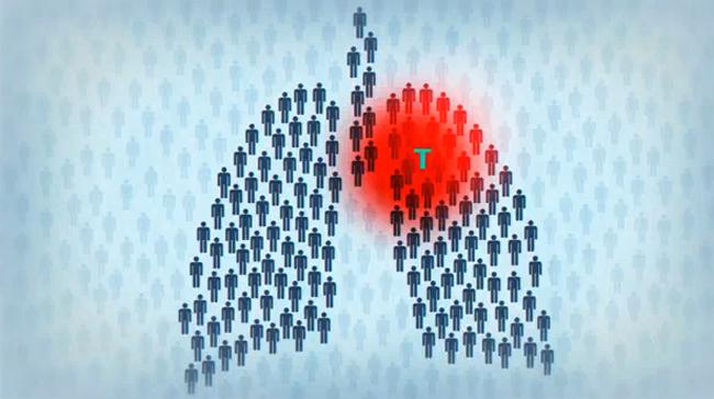 Туберкульоз у дітей, перші признаки, профілактика