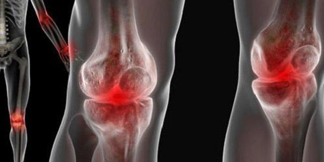 Реактивний артрит у дітей