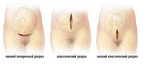 кесарів розтин