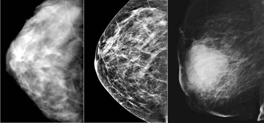 Мамографія знімок