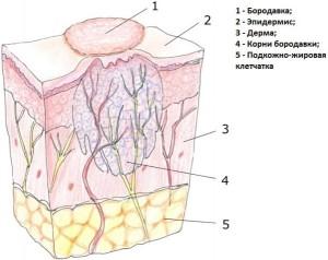 struktura-porazhennoj-tkani