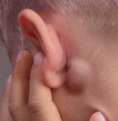 Збільшений лімфовузол за вухом