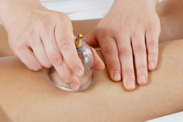 Антицелюлітний масаж банками