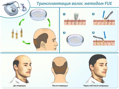Лікування облисіння пересадка