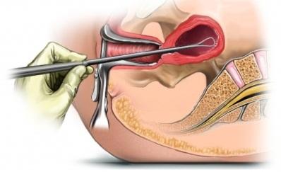 плацентарний поліп лікування