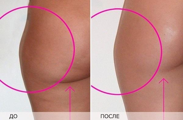 Антицелюлітний масаж щіткою до і після