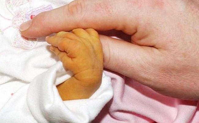 білірубін у немовлят