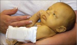 підвищений білірубін у немовлят