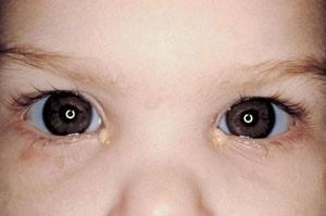 Закисають очі у дитини