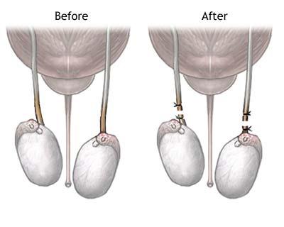 Як проводиться вазектомія?