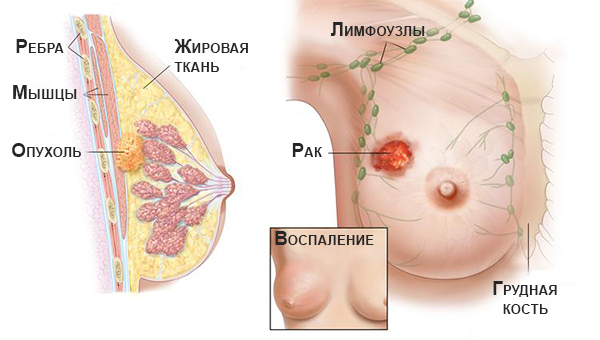 Рак молочної залози: симптоми, діагностика, лікування