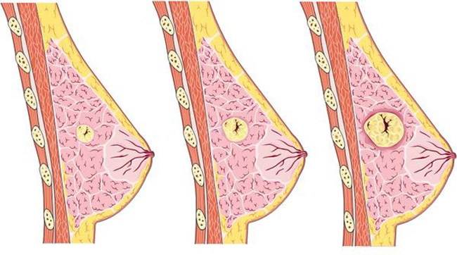 Мастопатія: причини, симптоми, лікування