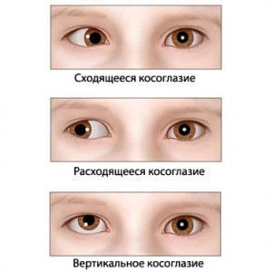 vidy-kosoglazija