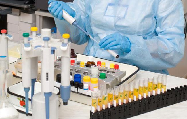 Біохімічний аналіз крові: розшивровка основних показників