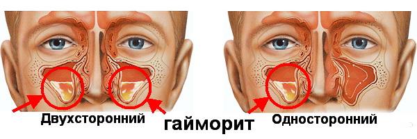 При двосторонньому гаймориті симптоматика більш виражена і хвороба прогресує з прискореної силою