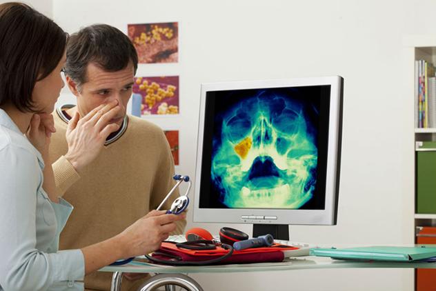 Хронічний гайморит: симптоми, причини, методи лікування