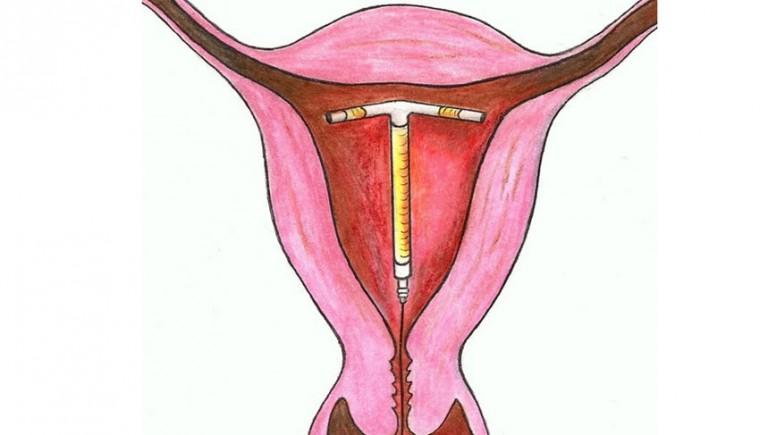Внутрішньоматкова спіраль проти вагітності: механізм дії