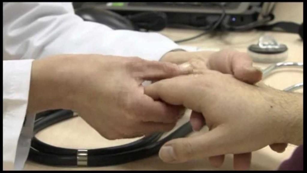 Ревматоїдний поліартрит: симптоми, причини, лікування