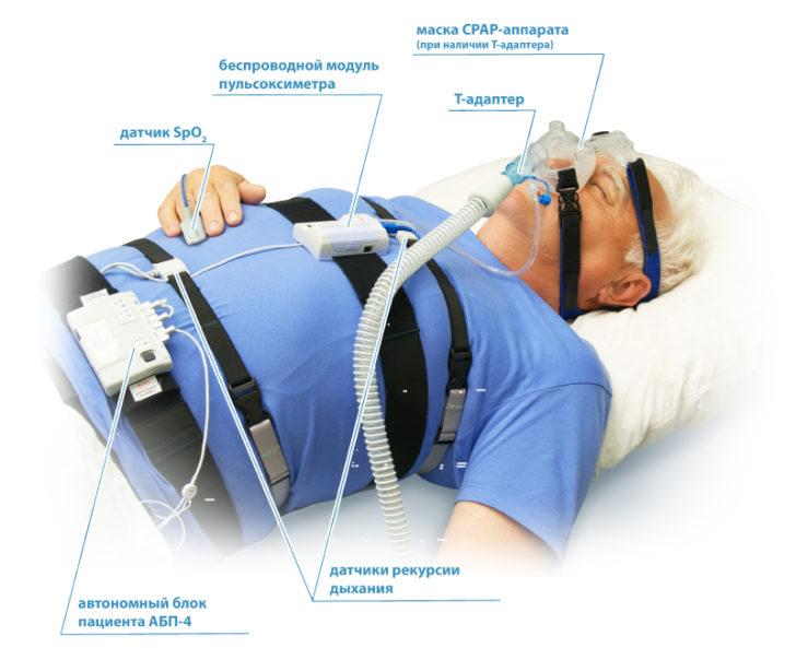 Полісомнографія - це ефективний метод діагностики апное сну