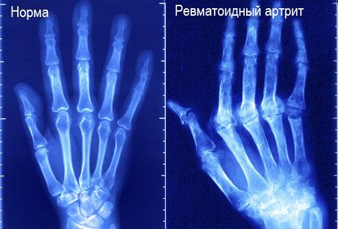 xray_of_rheumatoid_arthritis