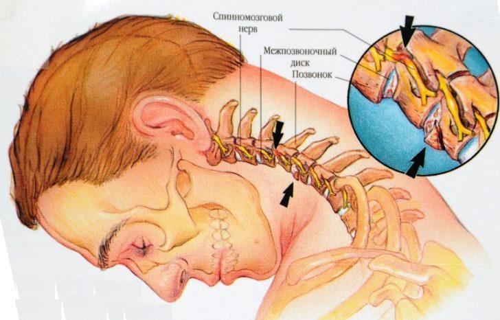 При радикуліті відбувається защемлення нервових закінчень, в результаті чого починається їх запалення