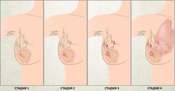 Пухлина на другій стадії далеко не завжди зачіпає оточуючі тканини і лімфатичні вузли