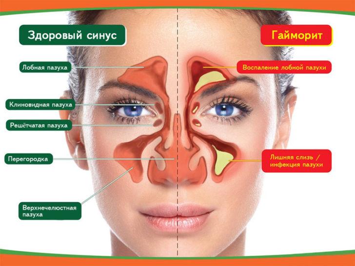 Гайморит протікає важко і характеризується тиском в місці скупчення гною при переході катаральної стадії в гнійну
