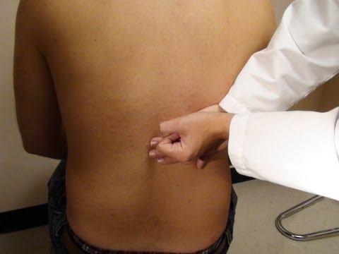 Биття при пієлонефриті підсилює больові відчуття