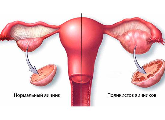 Полікістоз яєчників і вагітність