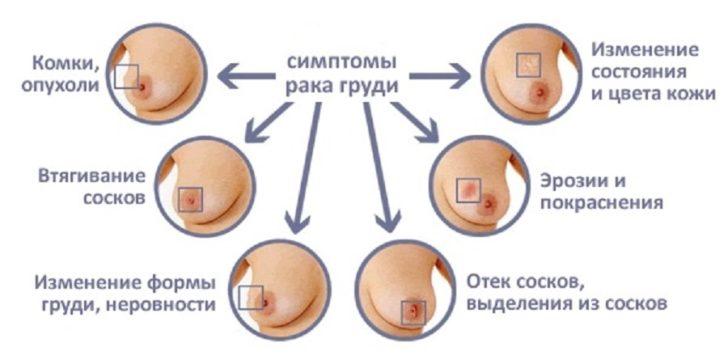 Перші симптоми раку молочної залози з'являються при зростанні ущільнення: вони маскуються під клініку запалення