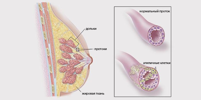 Инвазивно-протоковая пухлина є найпоширенішим видом раку грудей