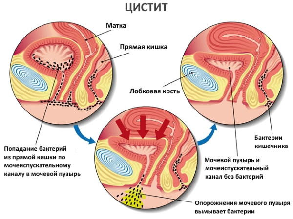 При попаданні хвороботворної мікрофлори в сечовий міхур розвивається цистит