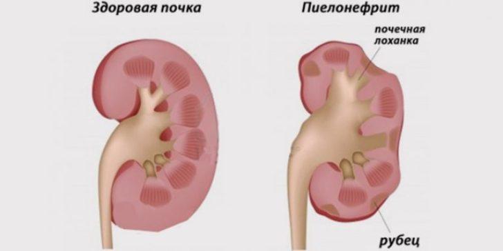 Пієлонефрит у чоловіків призводить до рубцювання тканини нирок