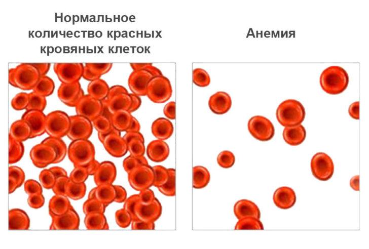Зліва - нормальна кількість еритроцитів, праворуч - їх зниження (анемія)