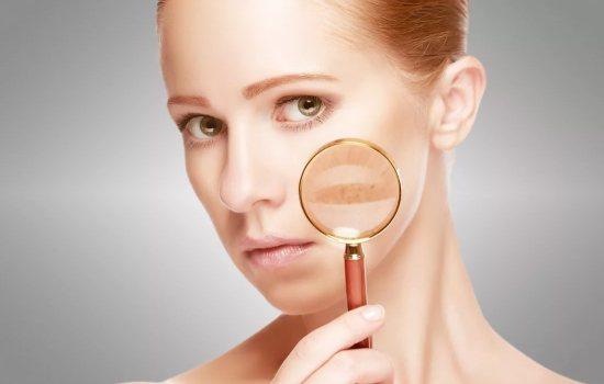 Як прибрати пігментні плями на обличчі за допомогою салонних і домашніх методів