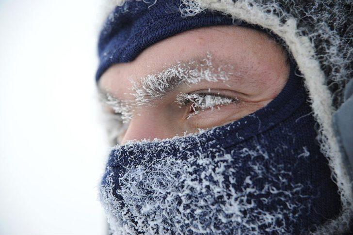 Взимку ризик захворіти на пієлонефрит в два рази більше, ніж влітку