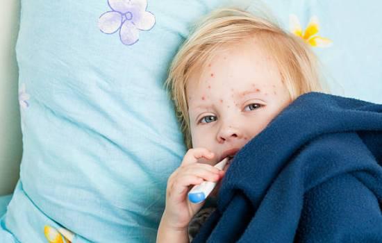 Вітрянка у дітей - лікування в домашніх умовах. Загальні принципи лікування вітрянки у дітей в домашніх умовах