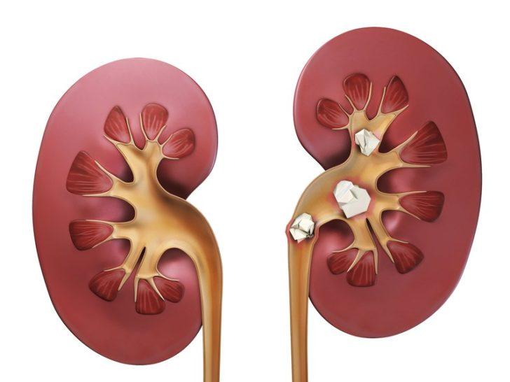 Камені в нирках можуть стати причиною екскреторної анурії