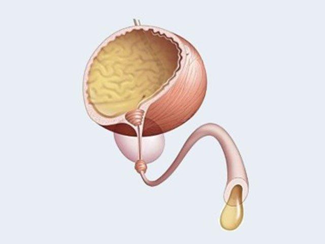 Анурія - це клінічний симптом, що характеризується повною відсутністю урини в сечовому міхурі