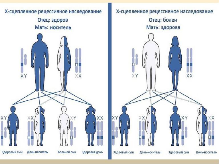 Гемофілія - спадкова хвороба системи згортання крові