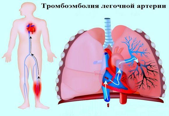 D-димер - сигнальний показник тромбозу і емболії в системі легеневої артерії