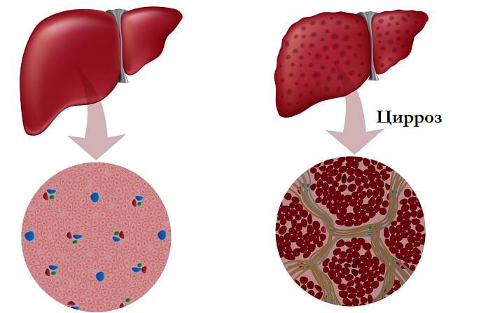 При цирозі в печінці відбувається розростання сполучної тканини (склероз)
