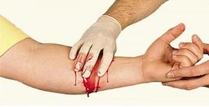 Кровотеча: як правильно надавати допомогу
