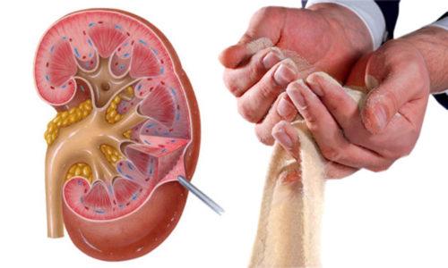 Пісок в нирках: причини, симптоми, діагностика, лікування