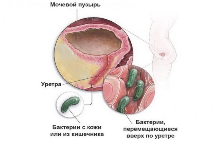 При поширенні інфекції по висхідному шляху гонорея може ускладнитися цистит, уретрит і навіть пієлонефрит