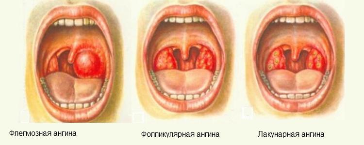 Гнійна ангіна - симптоми, причини і лікування в домашніх умовах