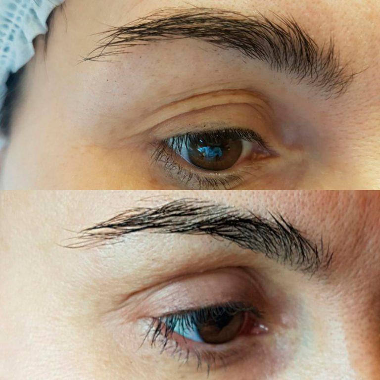 Лазерна шліфовка шкіри повік, фото до і після (через 2 місяці) у жінки 40+
