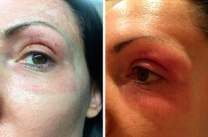 Лазерна шліфовка обличчя: фото до і після процедур у жінок за 40